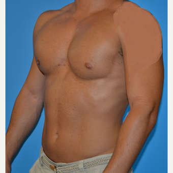 25-34 year old man treated with Pec Implants after 2696607