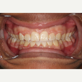 17 or under year old man treated with Braces after 3188520