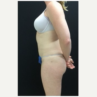 25-34 year old woman treated with Liposuction to Abdomen & Thighs after 3200812