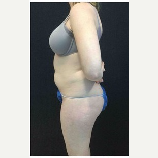 25-34 year old woman treated with Liposuction to Abdomen & Thighs before 3200812
