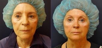 69 Year Old Female Before/After Ultherapy X2. 12 Months After (note, patient had a face lift 11 years earlier) before 1053218
