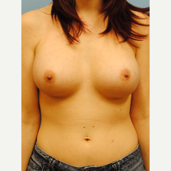 25-34 year old woman treated with Breast Augmentation after 2990168