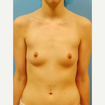 25-34 year old woman treated with Breast Augmentation before 2990168
