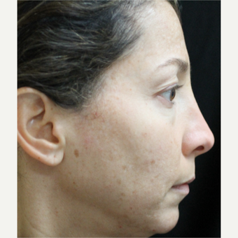 35-44 year old woman treated with Cosmelan