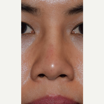 25-34 year old woman treated with Non Surgical Nose Job after 3650022