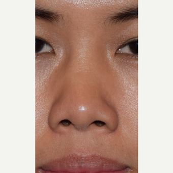 25-34 year old woman treated with Non Surgical Nose Job before 3650022