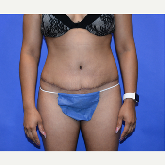 45-54 year old woman treated with Tummy Tuck after 3580057