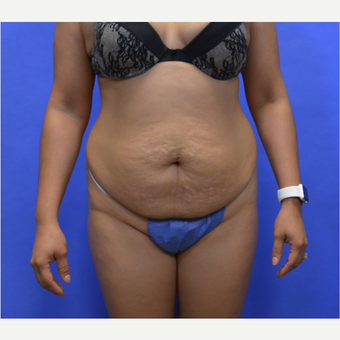 45-54 year old woman treated with Tummy Tuck before 3580057