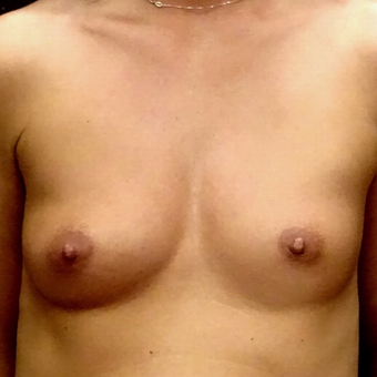 25-34 year old woman treated with Breast Augmentation before 3129454