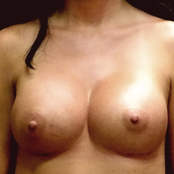 25-34 year old woman treated with Breast Augmentation after 3129454