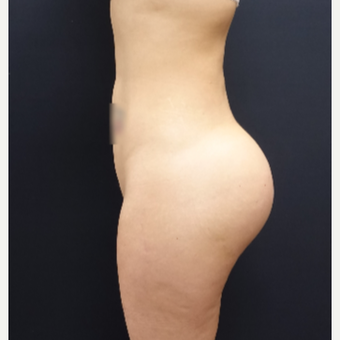 25-34 year old woman treated with 712cc Round Silicone Butt Implants after 3259556