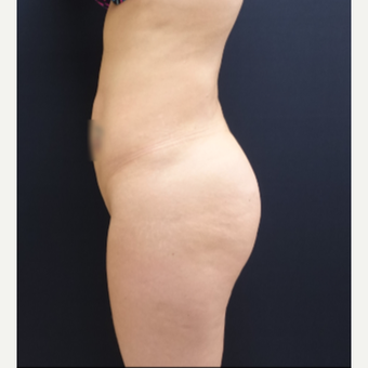 25-34 year old woman treated with 712cc Round Silicone Butt Implants before 3259556