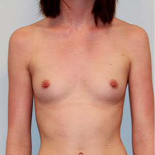 Breast Augmentation before 2130310