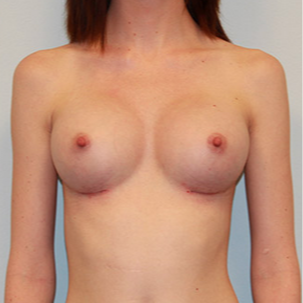 Breast Augmentation after 2130310