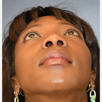 35-44 year old woman treated with Rhinoplasty before 3289000