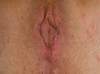 Vaginal Rejuvenation after 937853