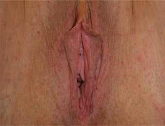 Vaginal Rejuvenation before 937853