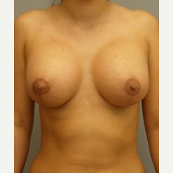 25-34 year old woman treated with Breast Lift with Implants after 3122350