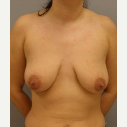 25-34 year old woman treated with Breast Lift with Implants before 3122350