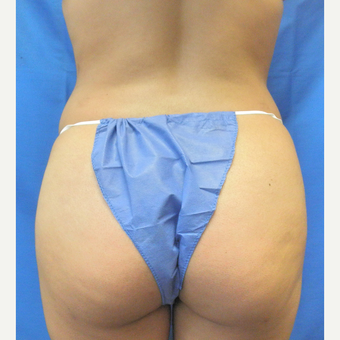 25-34 year old woman treated with Brazilian Butt Lift after 3071258