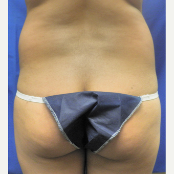 25-34 year old woman treated with Brazilian Butt Lift before 3071258