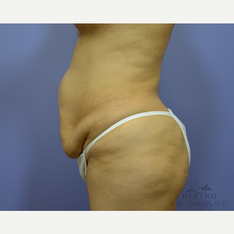 45-54 year old woman treated with Tummy Tuck before 3422031
