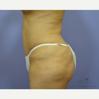 45-54 year old woman treated with Tummy Tuck after 3422031