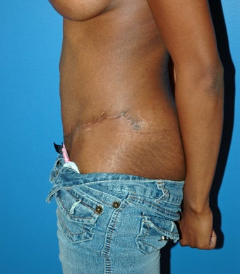 Tummy tuck after 1071334