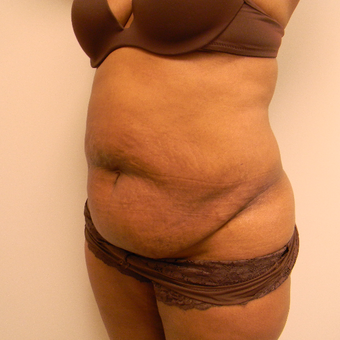 35-44 year old woman treated with Tummy Tuck before 3180365