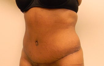 35-44 year old woman treated with Tummy Tuck after 3180365