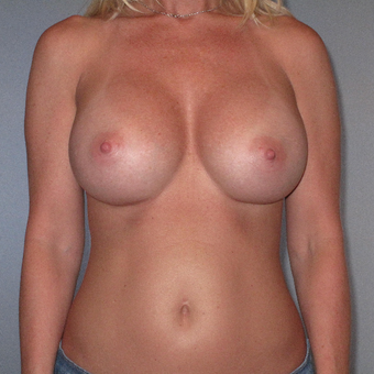 35-44 year old woman treated with Breast Augmentation after 3320741