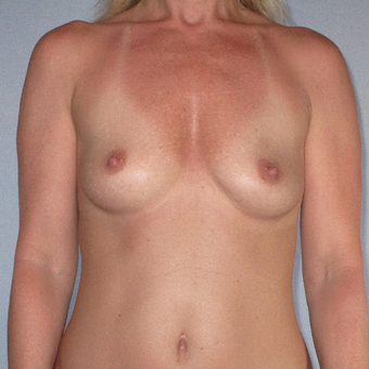 35-44 year old woman treated with Breast Augmentation before 3320741