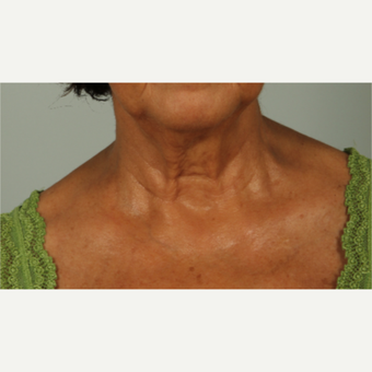 55-64 year old woman treated with Infini RF before 2989799