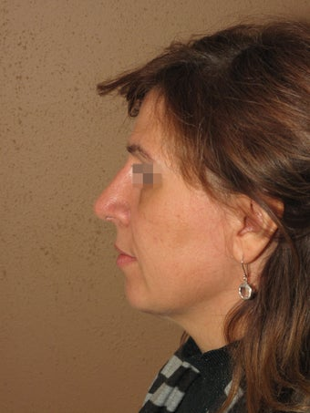 Nose job rhinoplasty after 270710