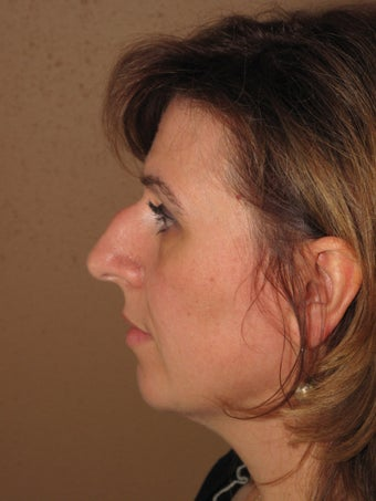 Nose job rhinoplasty before 270710