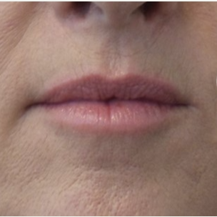 45-54 year old woman treated with Volbella before 3685161