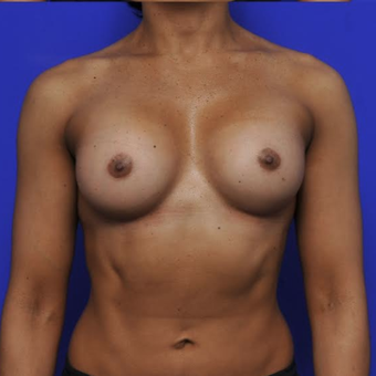 41 year old woman treated with Breast Augmentation after 3840334