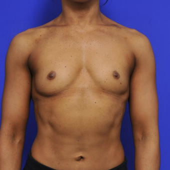 41 year old woman treated with Breast Augmentation before 3840334