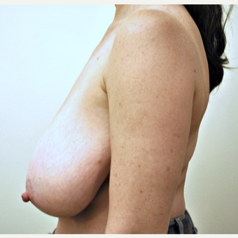 52 year-old Breast Reduction before 3776355
