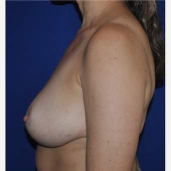 52 year-old Breast Reduction after 3776355