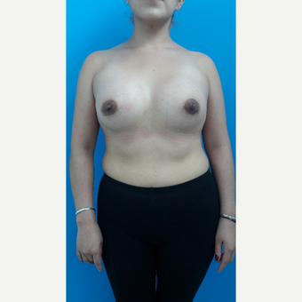 25-34 year old woman treated with Breast Augmentation after 3009394