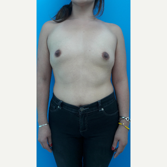 25-34 year old woman treated with Breast Augmentation before 3009394