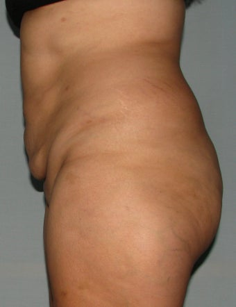 10 weeks after liposuction and SlimLipo laser after 1079348