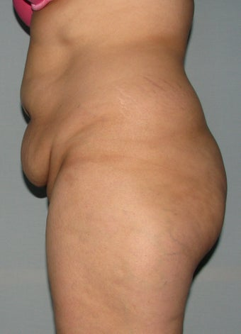 10 weeks after liposuction and SlimLipo laser before 1079348