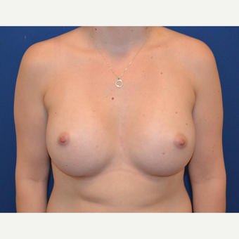 25-34 year old woman treated with Breast Augmentation after 3664093