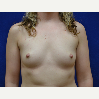 25-34 year old woman treated with Breast Augmentation before 3664093
