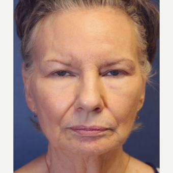 71 year old woman with a Complex Facelift before 3523216