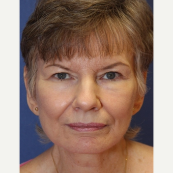 71 year old woman with a Complex Facelift after 3523216