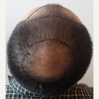 18-24 year old woman treated with FUE Hair Transplant before 3729980
