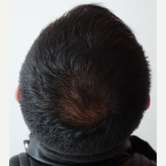 18-24 year old woman treated with FUE Hair Transplant after 3729980